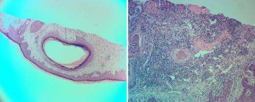 cystic-squamous-cell-carcinoma-of-forearm-keratoacanthoma-dermatopathology