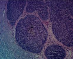 pigmented-bcc-neck-seborrheic-keratosis-orange-county-skin-cancer-pathology